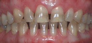 CQD Estética Dental - Carillas dentales ANTES