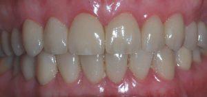 CQD Estética Dental - Carillas dentales DESPUÉS