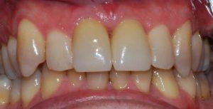 CQD Estética Dental - Caso coronas de zirconio DESPUÉS