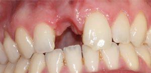 CQD Implantes - Caso implante unitario ANTES