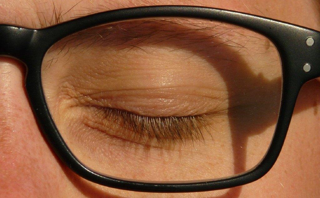 CQD - Oftalmología - Cirugía Oculoplástica