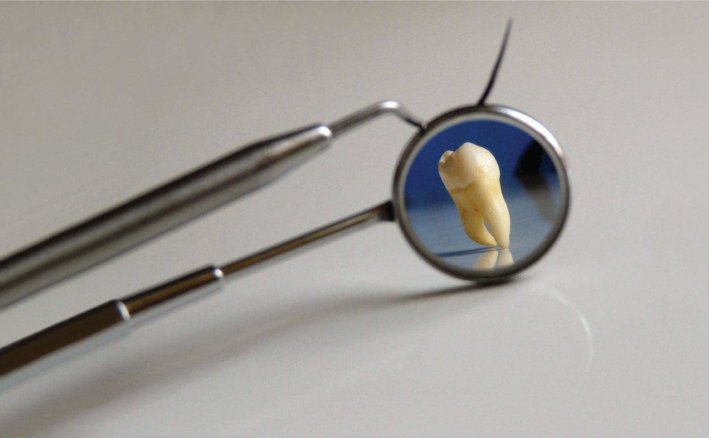 CQD - Clínica dental - Periodoncia
