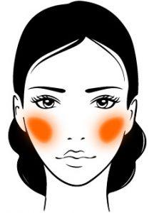 CQD Rejuvenecimiento facial Ácido hialurónico - Pómulos