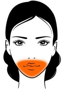 CQD Rejuvenecimiento facial ácido hialurónico - Zona-peribucal