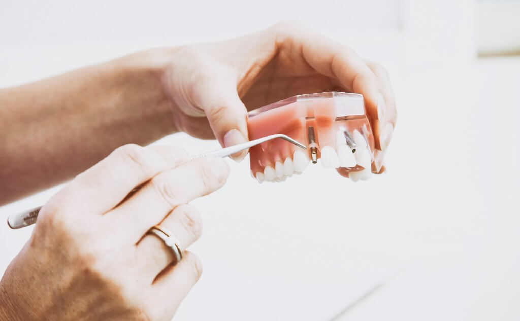 CQD - Clínica dental - Implantes