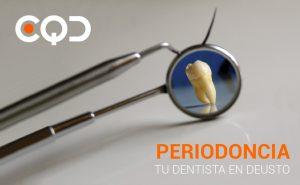 CQD Clínica dental Periodoncia. Tu dentista en Deusto