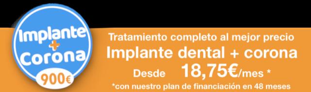 Implante y Corona desde 900€ . Implantes económicos