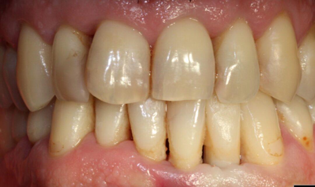 Corona estética cerámica sobre implante